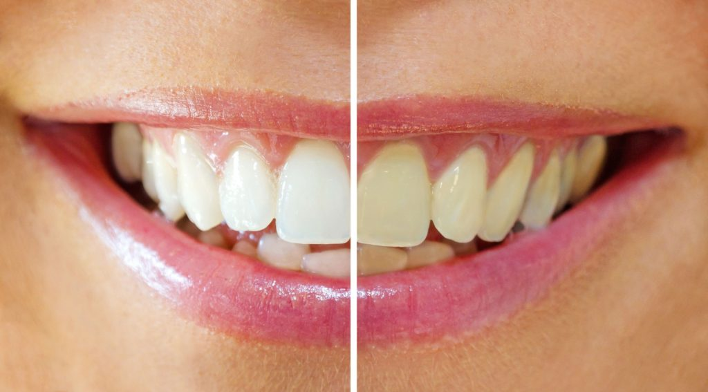 Types of Teeth Stains and How to Remove Them