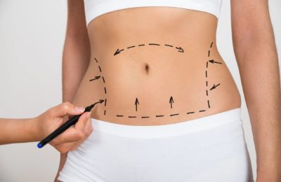 Choosing to Change: Being Highly Confident About Your Cosmetic Surgery