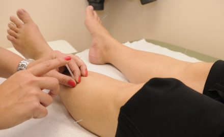 4 Reasons Why Acupuncture Treatment Is the Most Popular Holistic Healing