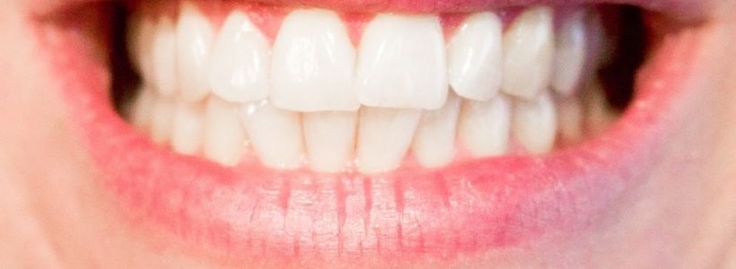 3 Common Oral Problems and How to Fix Them