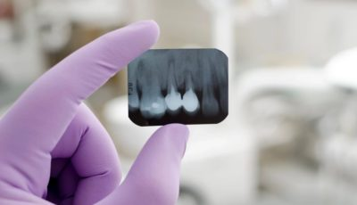 Filling the gaps: What are dental implants and when do you need them?
