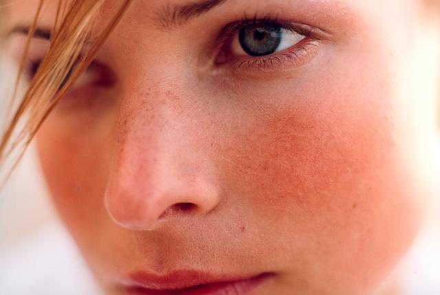 Почему при высокой температуре кожа лица краснеет