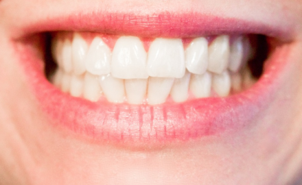 Crooked Teeth: Is Invisalign The Right Answer For You?